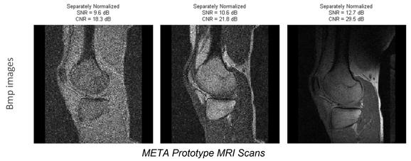 META Prototype MRI Scans