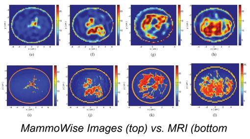 MammoWise-top vs MRI-bottom